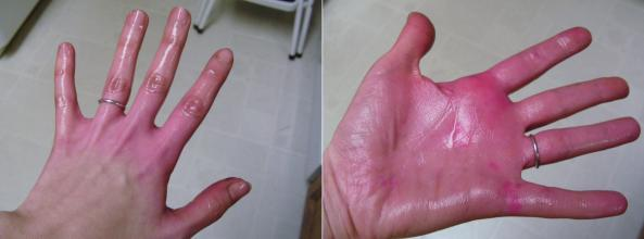 Food Coloring on Hands